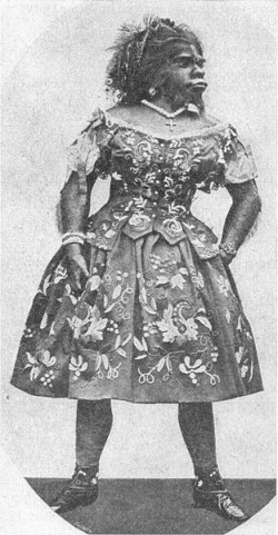 Julia Pastrana of Mexico had a highly unusual appearance and spent much of her life on display around the world. Her remains wound up in Oslo but are now being returned to Mexico for burial, more than 140 years after her death. PHOTO: Wikipedia