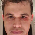 Doctor downplays Carlsen's blackeye
